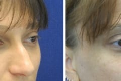 Rhinoplasty Photos - Before/After
