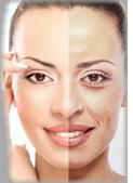 facial-resurfacing