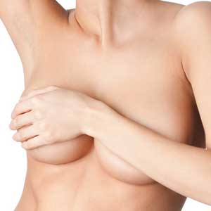 Removal of Implants and Breast Lift