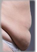 Apronectomy